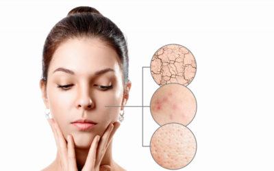 La mejor edad para un tratamiento de la piel