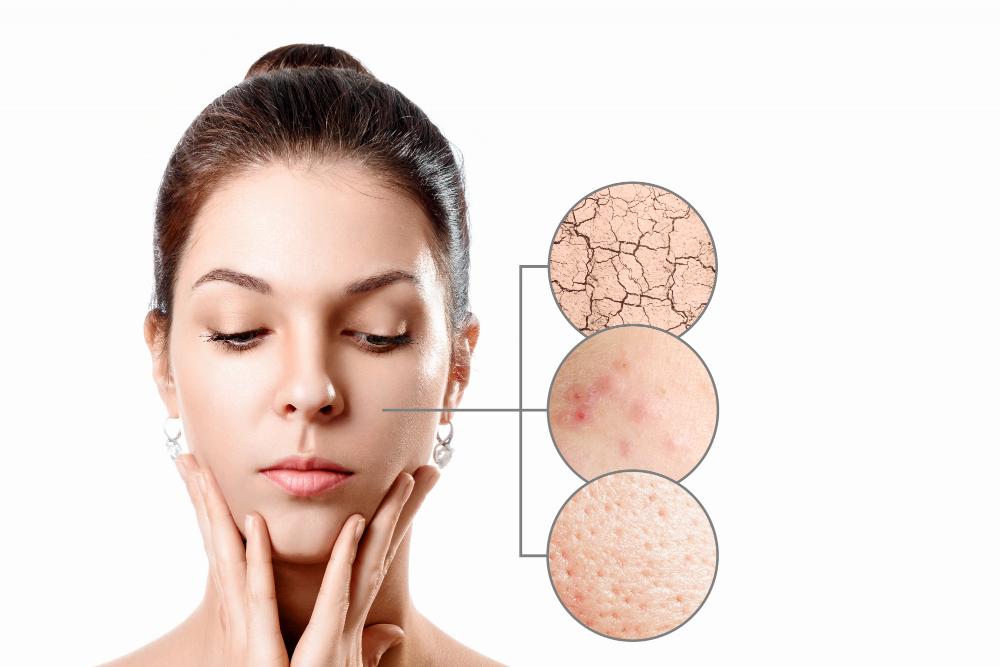 ¿Cuál es la mejor edad para realizar un tratamiento en la piel?
