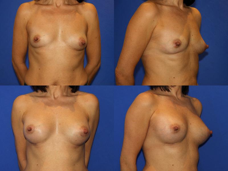 Cuando el pecho se hace como después de mammoplastiki