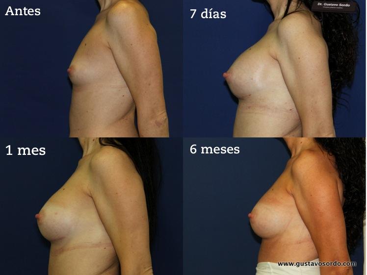 Mira videos de aumento de mamas