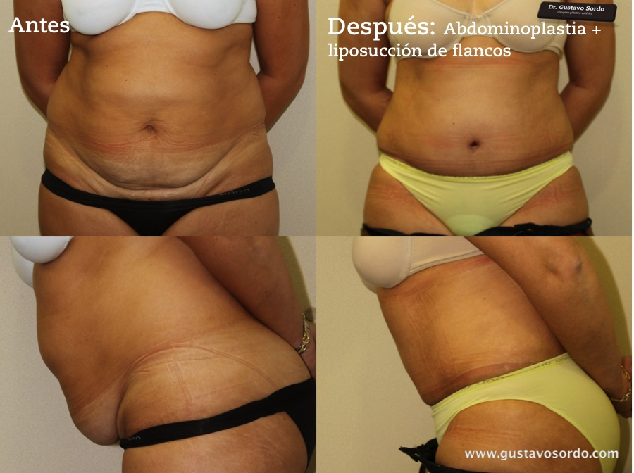 Abdominoplastia y liposucción de flancos