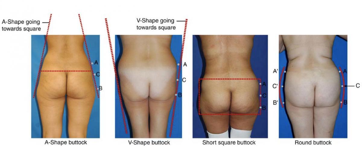 24.2 forma buttocks