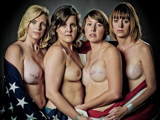 El cáncer de mama no es un lazo rosa