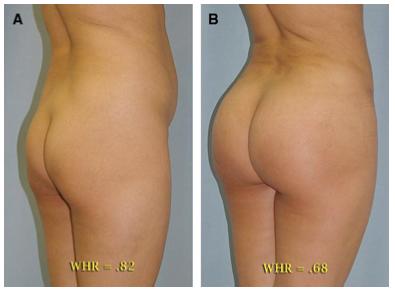 Las mujeres con curvas son más sanas