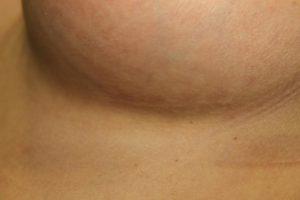 cicatriz en el surco mamario