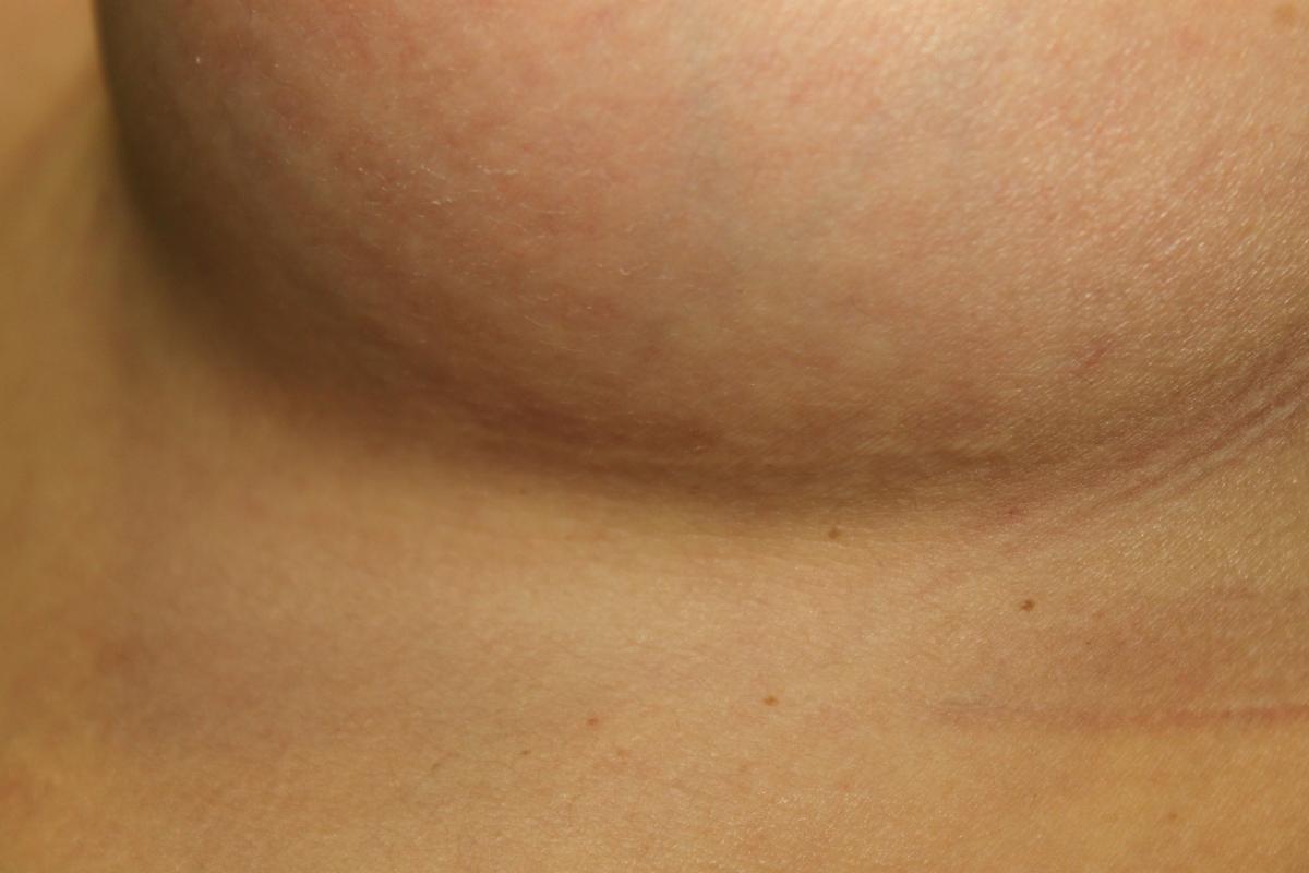 Aumento de mamas por el surco