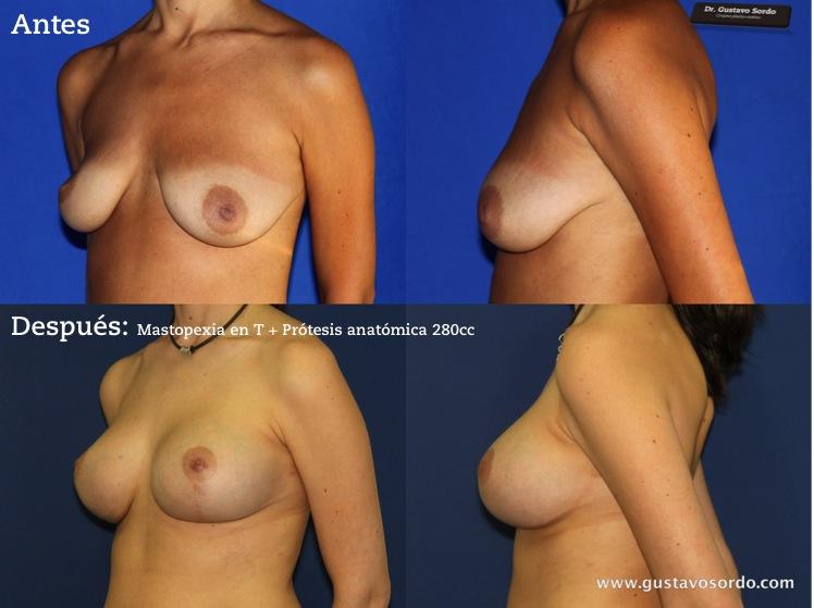 Implanty los pechos en pitere el precio