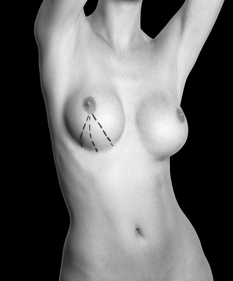 Operación de aumento de pecho con prótesis