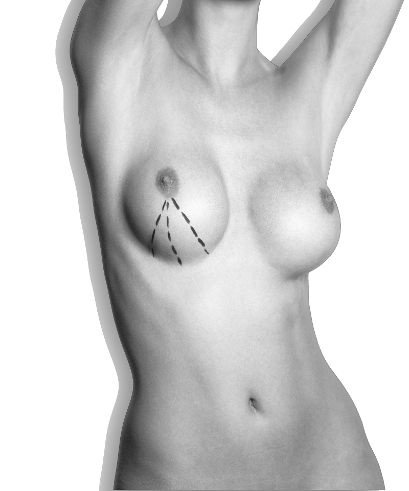 tecnica de una operación de elevacion de senos en la clinica del Dr. Gustavo Sordo