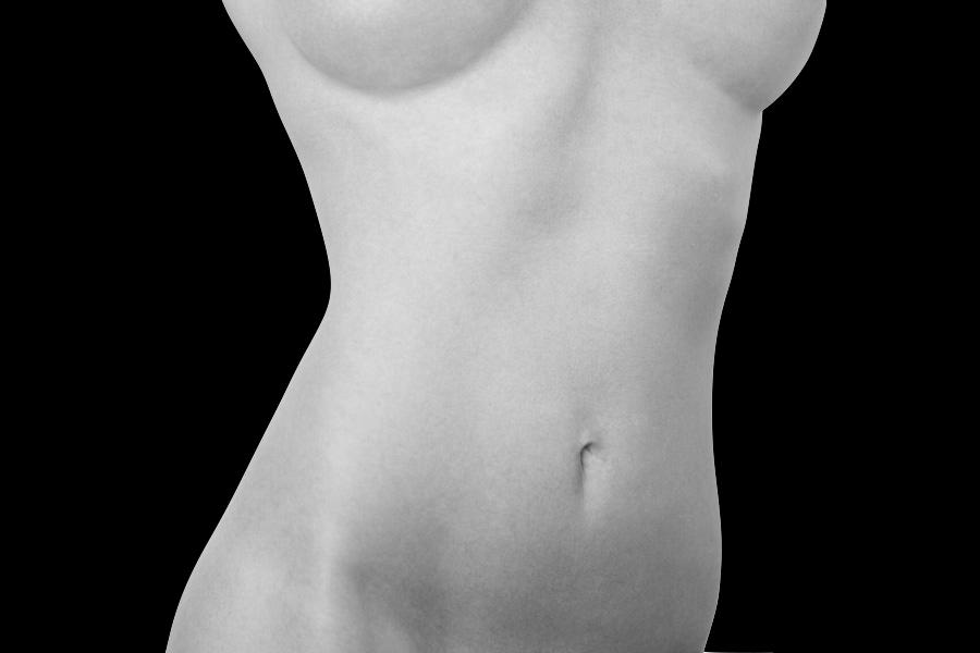 abdominoplastia: la técnica