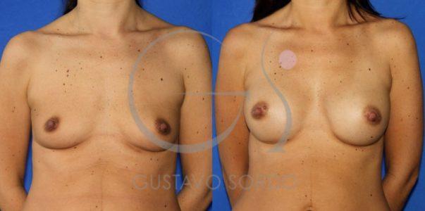 Fotos de una operación de aumento de mamas con prótesis anatómicas de 245cc
