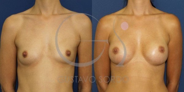 Aumento de mamas con prótesis anatómicas de 280cc (fotos)