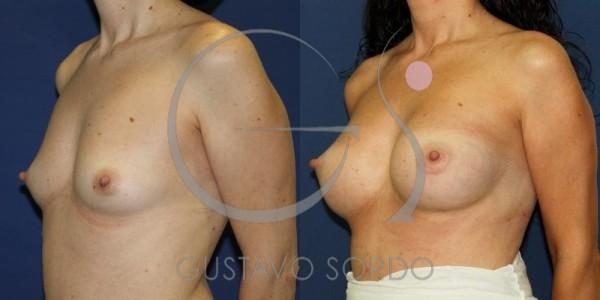 Fotos aumento de pecho con prótesis anatómicas de 295 cc.