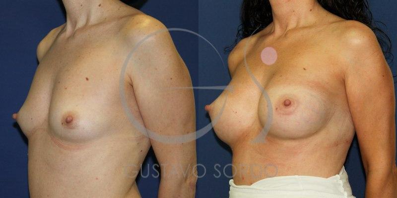 Antes y después de aumento de pecho con prótesis anatómicas