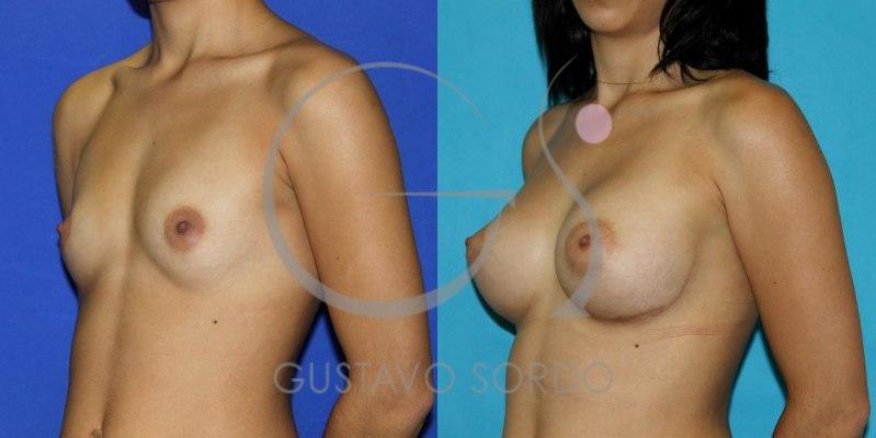 antes y después del aumento de pecho con técnica 24h recovery