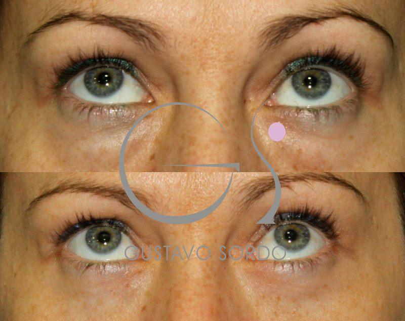 Blefaroplastia: Antes y después