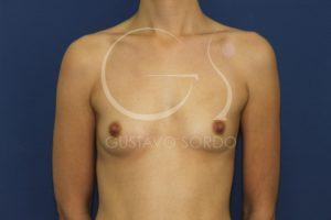 caso 02 aumento de mamas anatomicas 01 antes