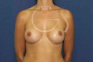 caso 02 aumento de mamas anatomicas 03 después