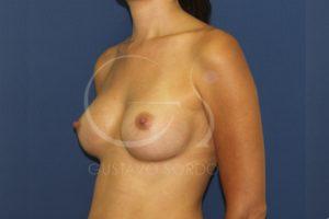 caso 02 aumento de mamas anatomicas 04 después
