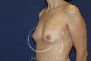 caso 03 aumento mamas antes frente 01