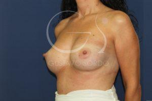 caso 03 aumento mamas después frente 04