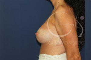 caso 03 aumento mamas después perfil 04