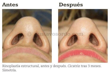 Rinoplastia Estructural antes y después