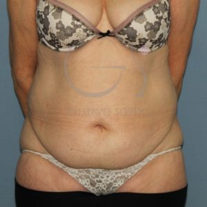 Antesde la abdominoplastia