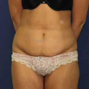Antes de la abdominoplastia