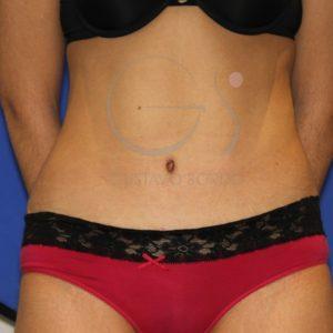 Abdominoplastia y miniabdominoplastia