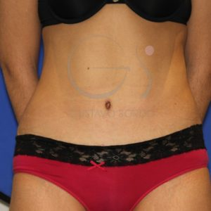 Después de la abdominoplastia