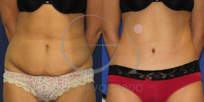 Antes y después de una abdominoplastia