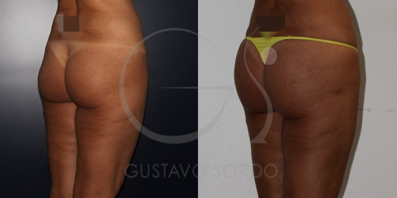 Antes y después de un aumento de glúteos