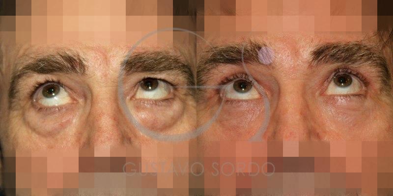 Antes y después de una blefaroplastia doble en hombre