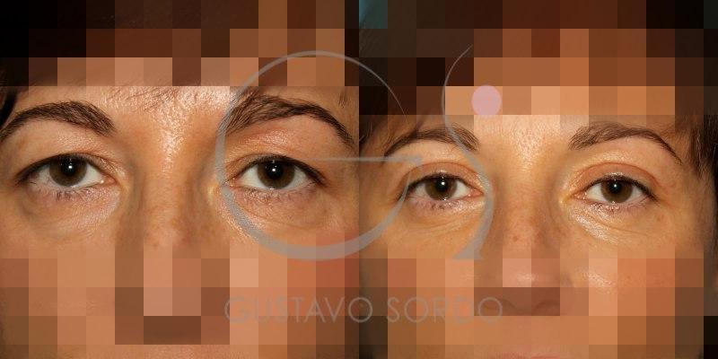 Antes y después de una blefaroplastia doble
