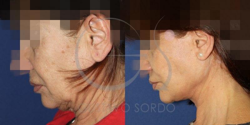 Lifting: Fotos del antes y el después en mujer de 58 años