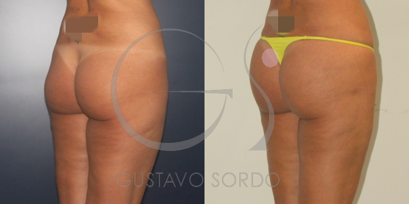 Antes y después de lipofilling en mujer de 34 años