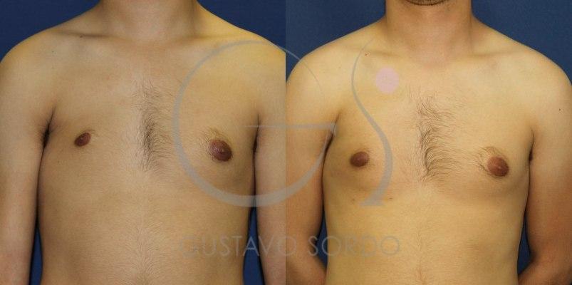 Antes y después de un lipofilling en el pecho de un hombre