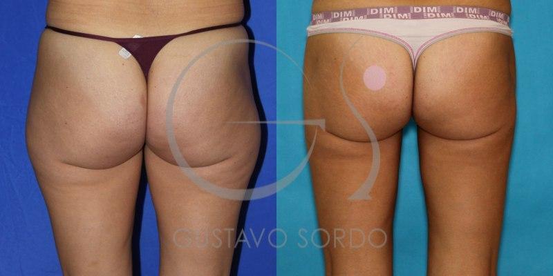 Antes y después de una liposucción, mujer de 32 años