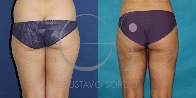 Liposucción en mujer de 38 años: Fotos del antes y después