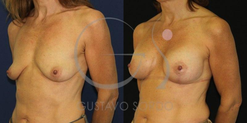 Antes y después de una mastopexia en mujer de 46 años [FOTOS]