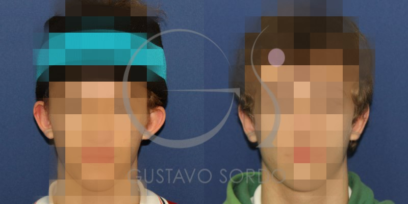 Antes y después de una otoplastia: Hombre de 19 años [FOTOS]