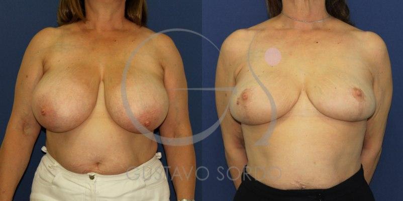 Reducción de mamas: Fotos del antes y después de una mujer de 52 años