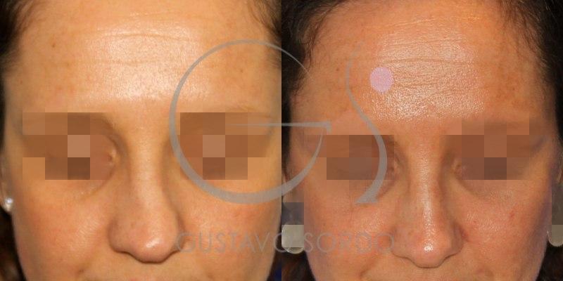 Antes y después de una rinoplastia en mujer de 36 años