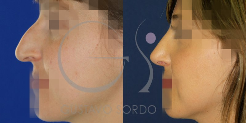 antes y después de una rinoplastia en mujer de 31 años