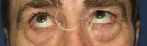 blefaroplastia C2 antes 1