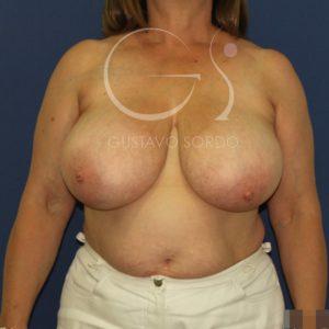 Antes de la reducción de mamas