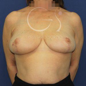 Después de la reducción de mamas