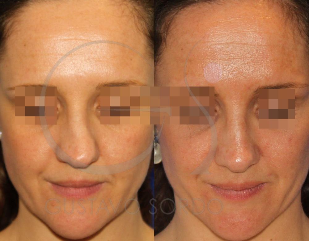 Rinoplastia en mujer36 años con nariz torcida