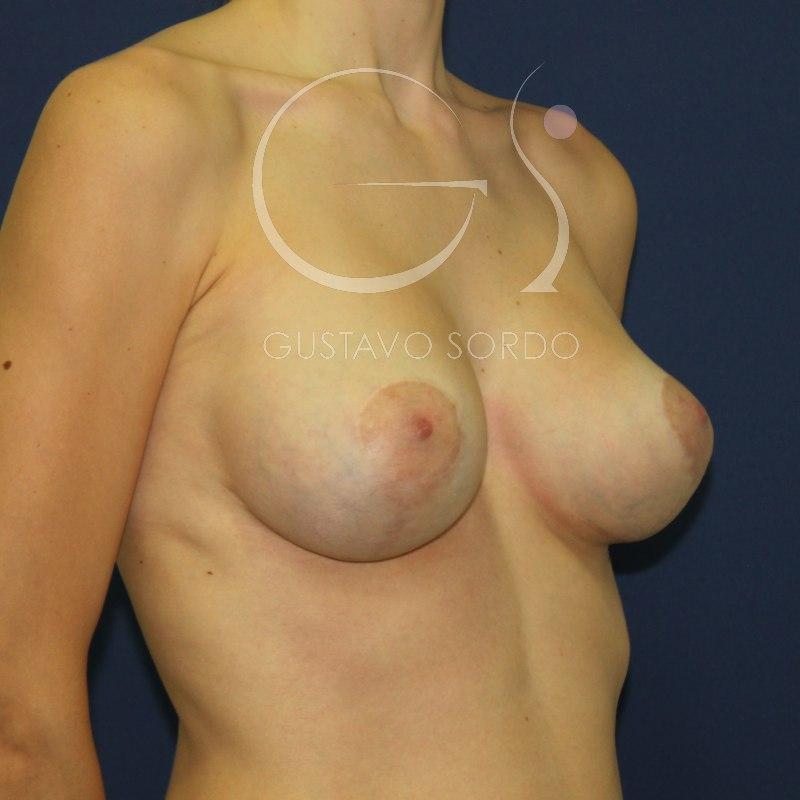 Tipos de mastopexia según la forma del pecho